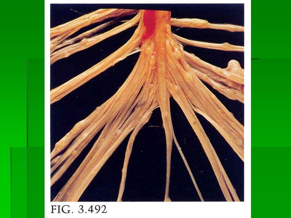 Nörofibromatozis  Tip2 Nörofibromatozis:  Otozomal dominant,gen NF2 22q12 de haritalanmıştır.merlin,hücredeki yapısal proteinlere benzer  1/40.000-50.000  Bilaterral akustik schwannom ve multipl meningiom,gliomlar