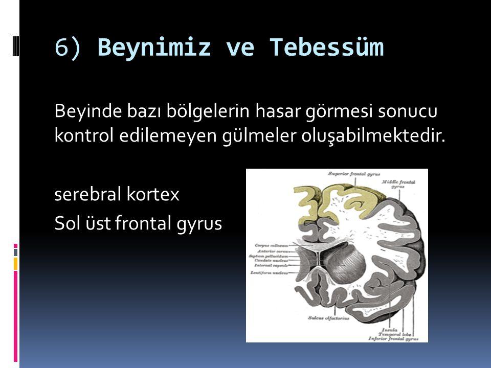 6) Beynimiz ve Tebessüm Beyinde bazı bölgelerin hasar görmesi sonucu kontrol edilemeyen gülmeler oluşabilmektedir. serebral kortex Sol üst frontal gyr