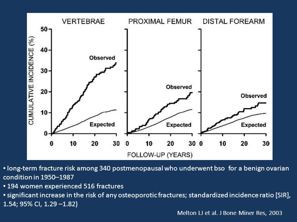 long-term fracture risk among 340 postmenopausal who underwent bso for a benign ovarian condition in 1950–1987 194 women experienced 516 fractures sig