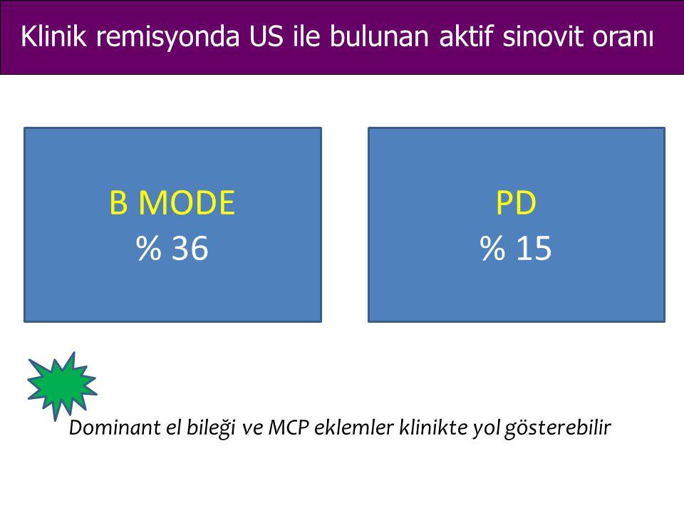 Klinik remisyonda US ile bulunan aktif sinovit oranı B MODE % 36 PD % 15 Dominant el bileği ve MCP eklemler klinikte yol gösterebilir
