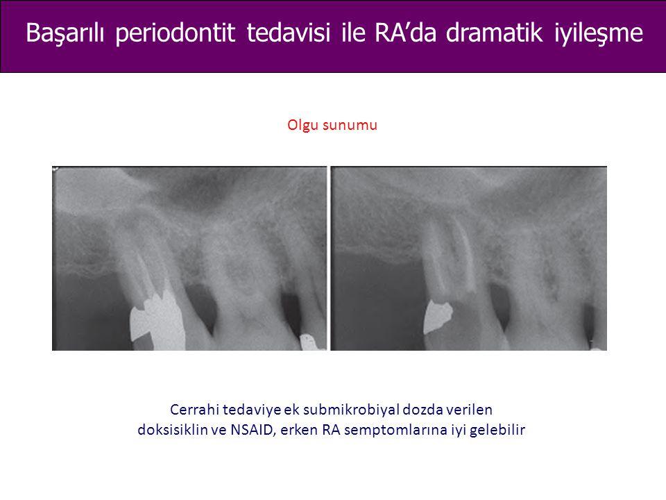 Cerrahi tedaviye ek submikrobiyal dozda verilen doksisiklin ve NSAID, erken RA semptomlarına iyi gelebilir Başarılı periodontit tedavisi ile RA'da dra