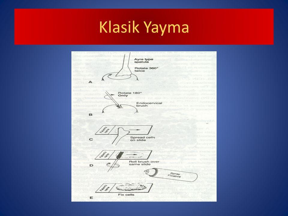 Klasik Yayma