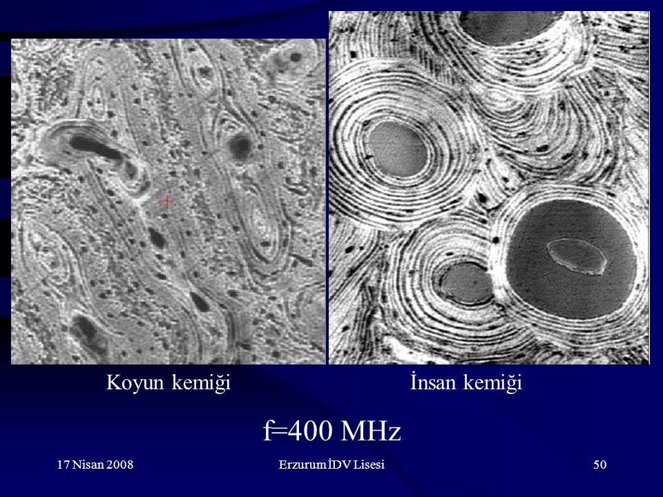 17 Nisan 2008Erzurum İDV Lisesi50 f=400 MHz İnsan kemiğiKoyun kemiği
