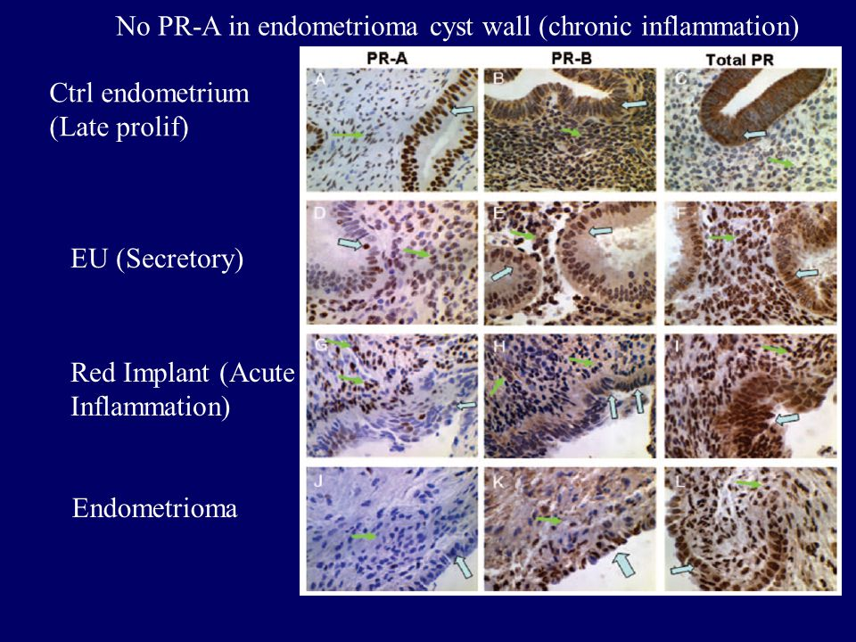 Ctrl endometrium (Late prolif) EU (Secretory) Red Implant (Acute Inflammation) Endometrioma No PR-A in endometrioma cyst wall (chronic inflammation)