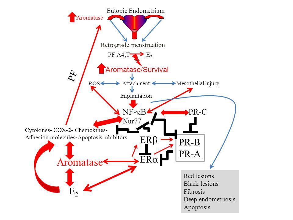 Eutopic Endometrium Retrograde menstruation Aromatase/Survival PF A4,T E 2 ROS Attachment Mesothelial injury Implantation NF-  B Nur77 Cytokines- COX