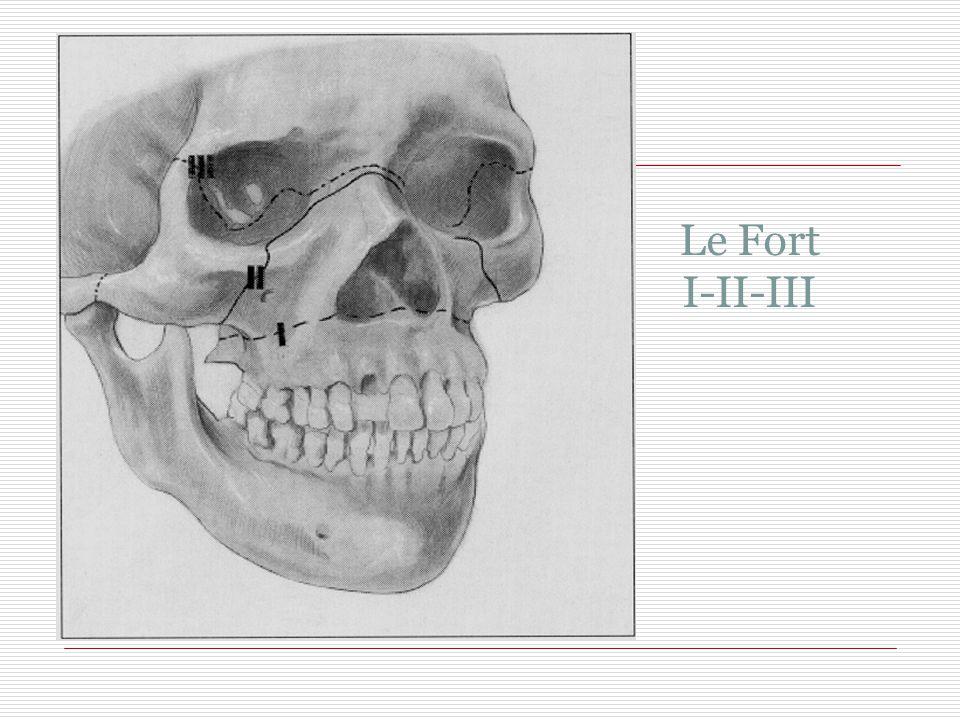 İKİNCİ BAKI Yüz:  Le Fort I-II-III,  Zigoma, nasal  kemik kırığı önemli değil septal hematom ara  Epistaksis fazlaysa geçici foley Ağız içi