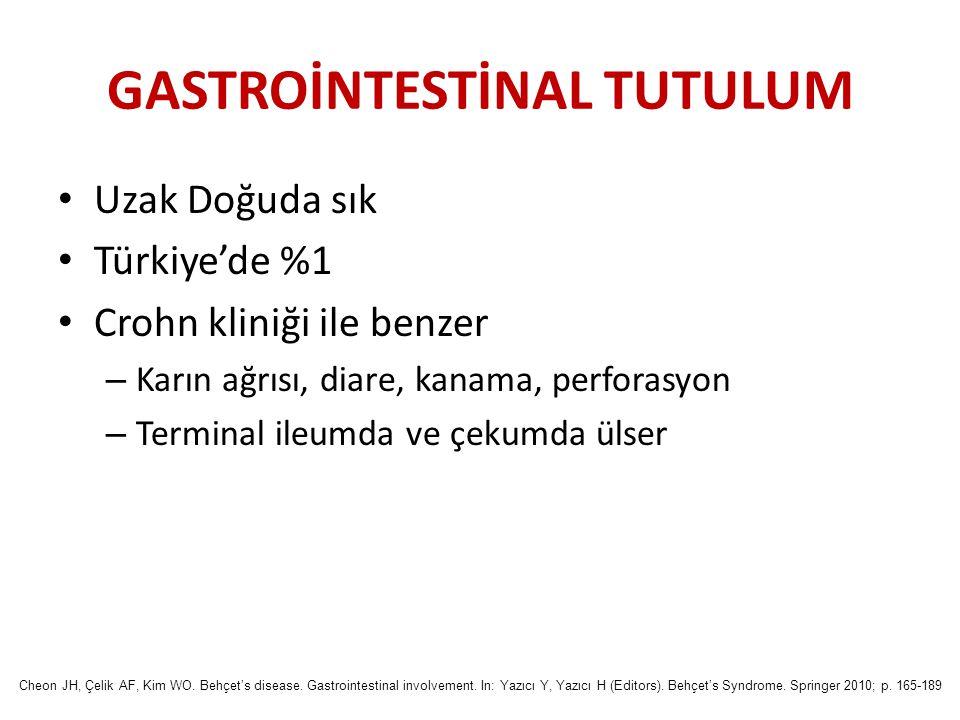 GASTROİNTESTİNAL TUTULUM Uzak Doğuda sık Türkiye'de %1 Crohn kliniği ile benzer – Karın ağrısı, diare, kanama, perforasyon – Terminal ileumda ve çekum
