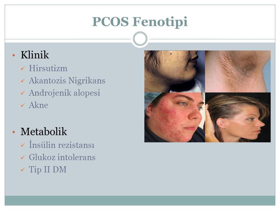 PCOS Fenotipi Klinik Hirsutizm Akantozis Nigrikans Androjenik alopesi Akne Metabolik İnsülin rezistansı Glukoz intolerans Tip II DM
