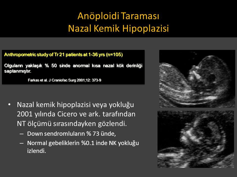 Anöploidi Taraması Nazal Kemik Hipoplazisi Anthropometric study of Tr 21 patients at 1-36 yrs (n=105) Olguların yaklaşık % 50 sinde anormal kısa nazal