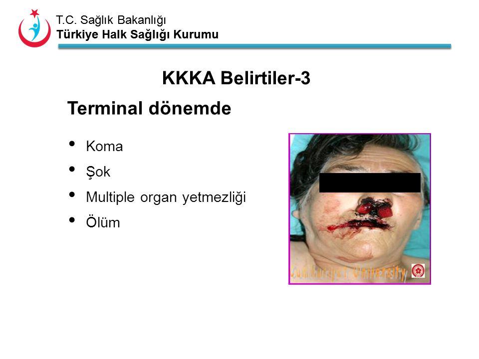T.C. Sağlık Bakanlığı Türkiye Halk Sağlığı Kurumu T.C. Sağlık Bakanlığı Türkiye Halk Sağlığı Kurumu Koma Şok Multiple organ yetmezliği Ölüm Terminal d
