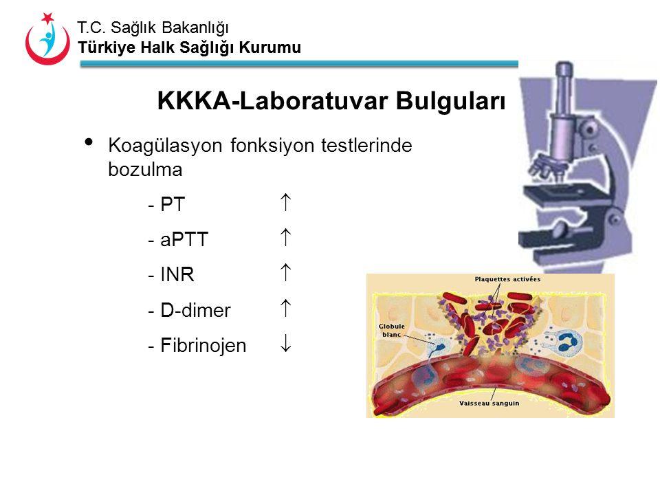 T.C. Sağlık Bakanlığı Türkiye Halk Sağlığı Kurumu T.C. Sağlık Bakanlığı Türkiye Halk Sağlığı Kurumu Koagülasyon fonksiyon testlerinde bozulma - PT  -