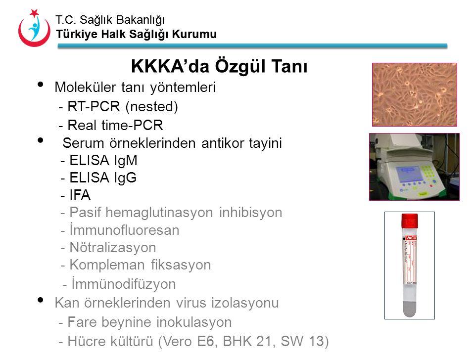 T.C. Sağlık Bakanlığı Türkiye Halk Sağlığı Kurumu T.C. Sağlık Bakanlığı Türkiye Halk Sağlığı Kurumu KKKA'da Özgül Tanı Moleküler tanı yöntemleri - RT-