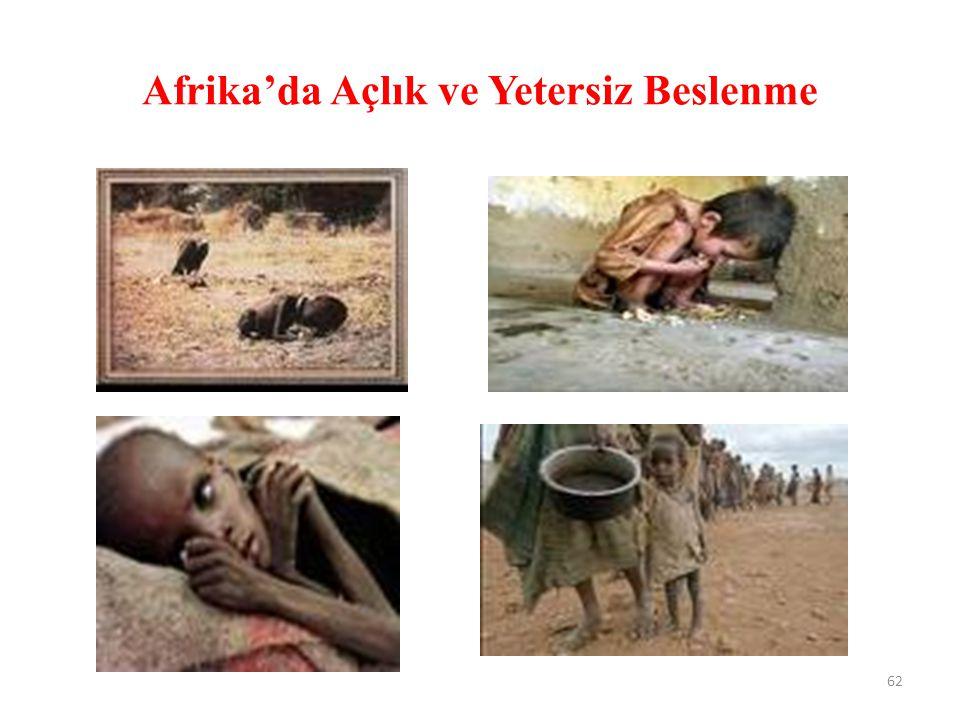 Afrika'da Açlık ve Yetersiz Beslenme 62
