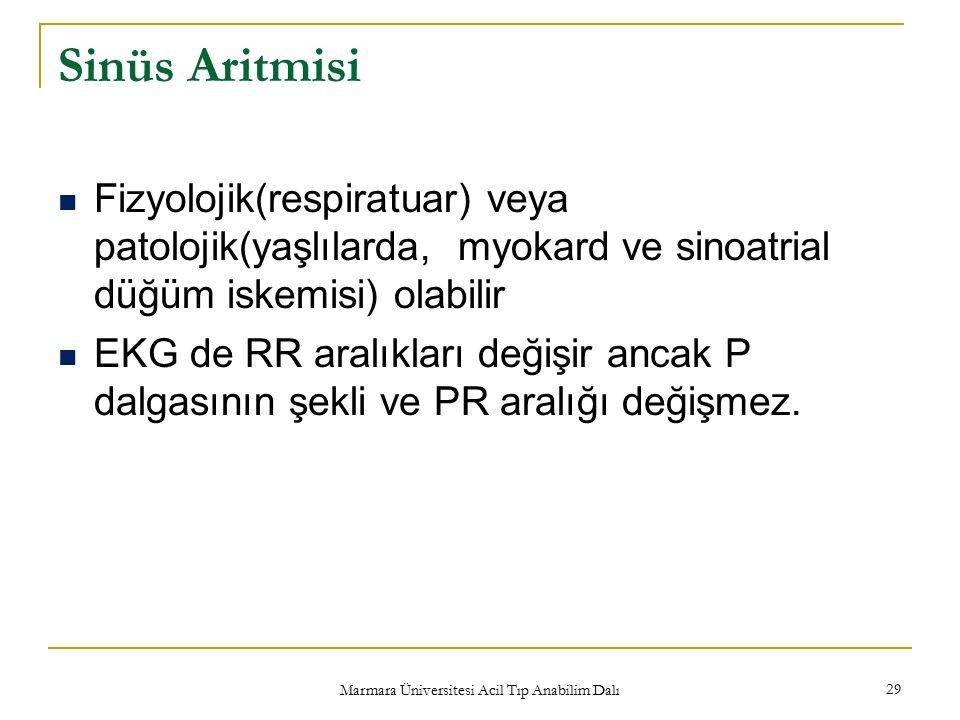 Marmara Üniversitesi Acil Tıp Anabilim Dalı 29 Sinüs Aritmisi Fizyolojik(respiratuar) veya patolojik(yaşlılarda, myokard ve sinoatrial düğüm iskemisi) olabilir EKG de RR aralıkları değişir ancak P dalgasının şekli ve PR aralığı değişmez.