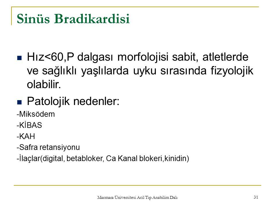 Marmara Üniversitesi Acil Tıp Anabilim Dalı 31 Sinüs Bradikardisi Hız<60,P dalgası morfolojisi sabit, atletlerde ve sağlıklı yaşlılarda uyku sırasında fizyolojik olabilir.