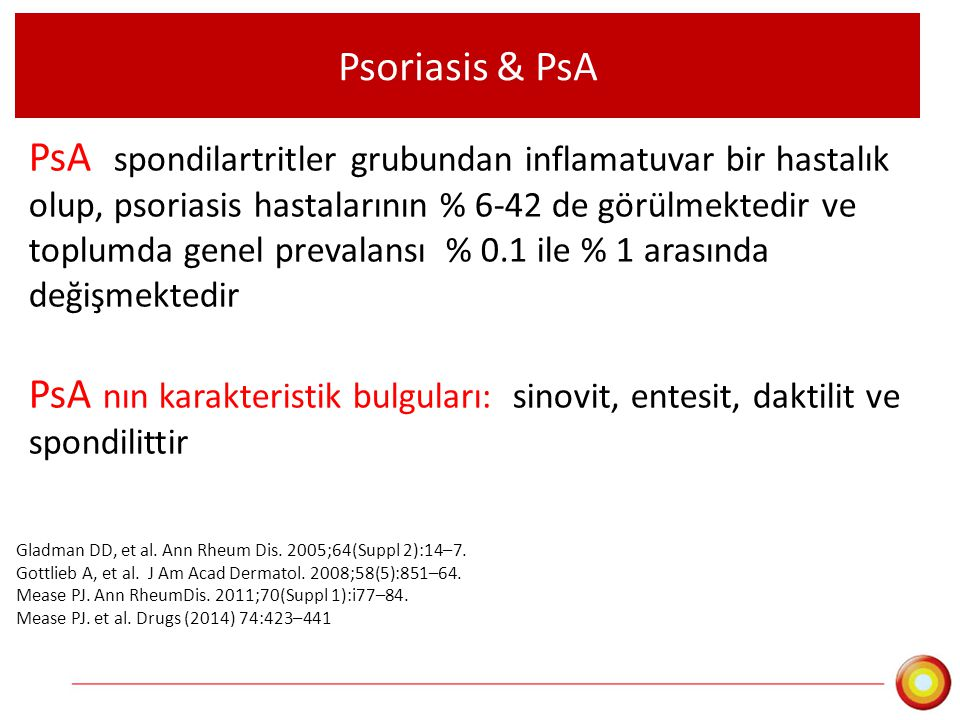 PsA nın 5 klinik formu Asimetrik oligoartikular artrit Simetrik poliartrit Distal interfalangeal artrit Spondilit ve sakroiliit Artritis mutilans Kivelevitch D.