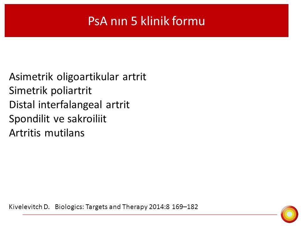 PsA nın 5 klinik formu Asimetrik oligoartikular artrit Simetrik poliartrit Distal interfalangeal artrit Spondilit ve sakroiliit Artritis mutilans Kive