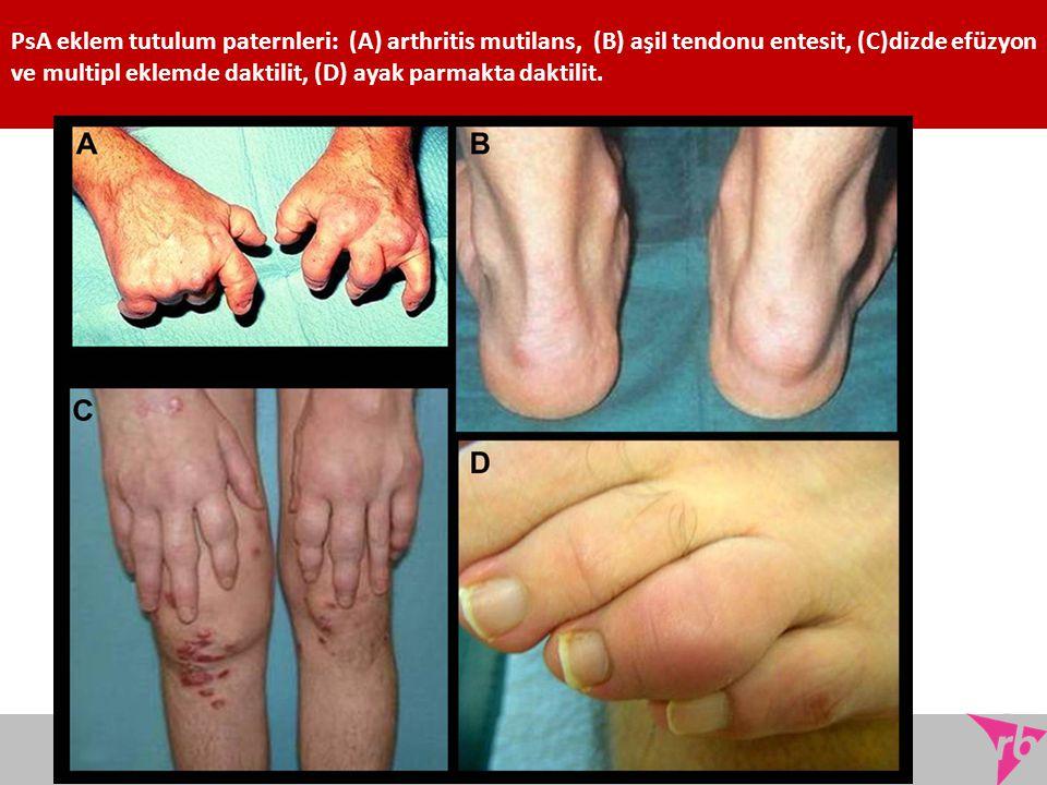 PsA eklem tutulum paternleri: (A) arthritis mutilans, (B) aşil tendonu entesit, (C)dizde efüzyon ve multipl eklemde daktilit, (D) ayak parmakta daktil