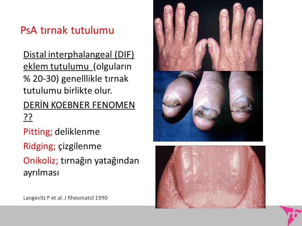PsA tırnak tutulumu Distal interphalangeal (DIF) eklem tutulumu (olguların % 20-30) genelllikle tırnak tutulumu birlikte olur. DERİN KOEBNER FENOMEN ?