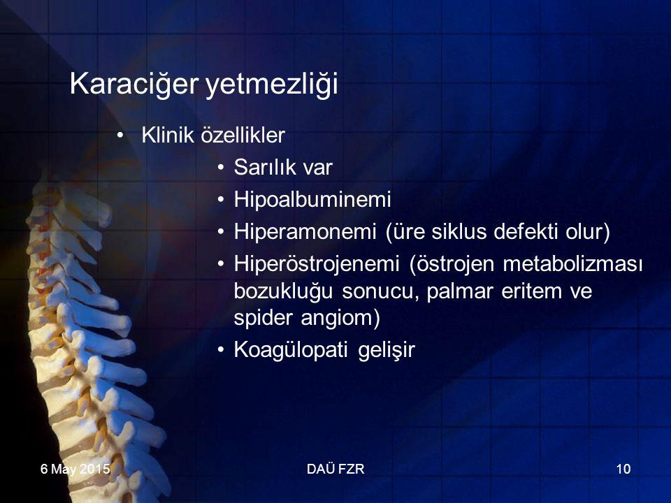 6 May 2015DAÜ FZR10 Karaciğer yetmezliği Klinik özellikler Sarılık var Hipoalbuminemi Hiperamonemi (üre siklus defekti olur) Hiperöstrojenemi (östrojen metabolizması bozukluğu sonucu, palmar eritem ve spider angiom) Koagülopati gelişir