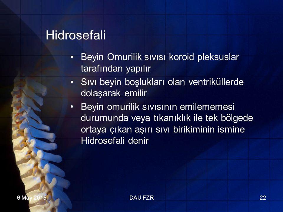 6 May 2015DAÜ FZR22 Hidrosefali Beyin Omurilik sıvısı koroid pleksuslar tarafından yapılır Sıvı beyin boşlukları olan ventriküllerde dolaşarak emilir Beyin omurilik sıvısının emilememesi durumunda veya tıkanıklık ile tek bölgede ortaya çıkan aşırı sıvı birikiminin ismine Hidrosefali denir