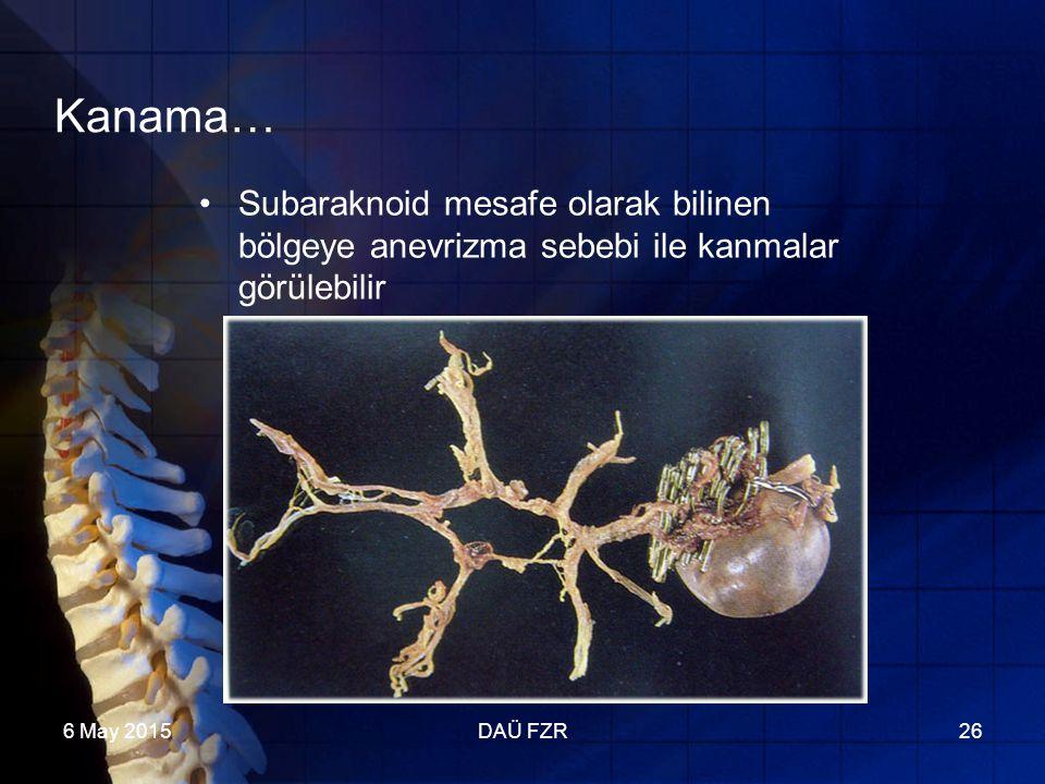 6 May 2015DAÜ FZR26 Kanama… Subaraknoid mesafe olarak bilinen bölgeye anevrizma sebebi ile kanmalar görülebilir