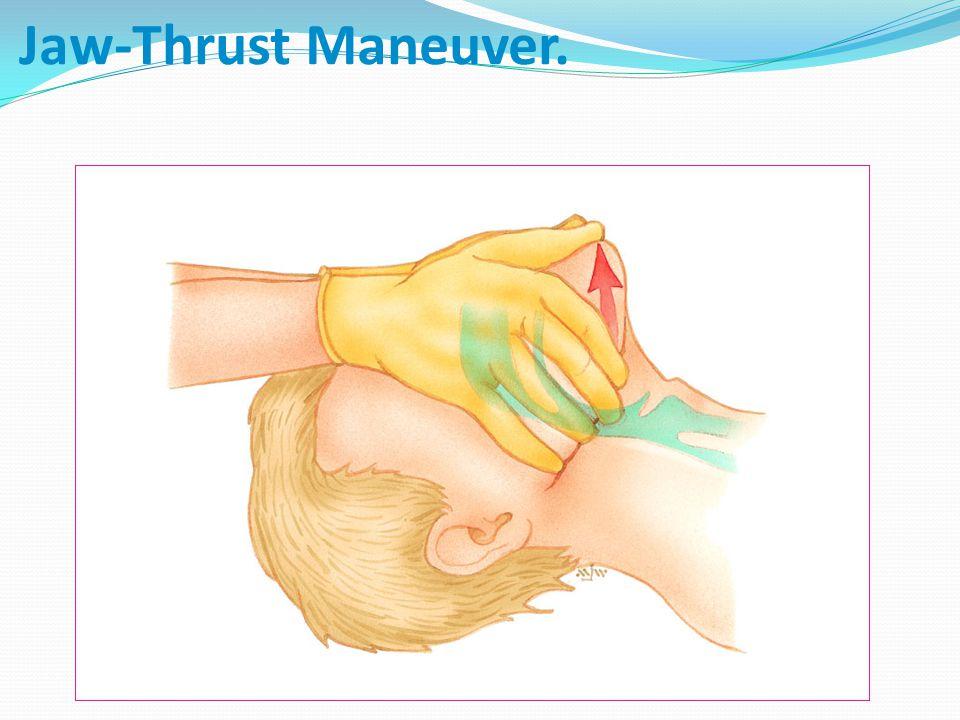Jaw-Thrust Maneuver.