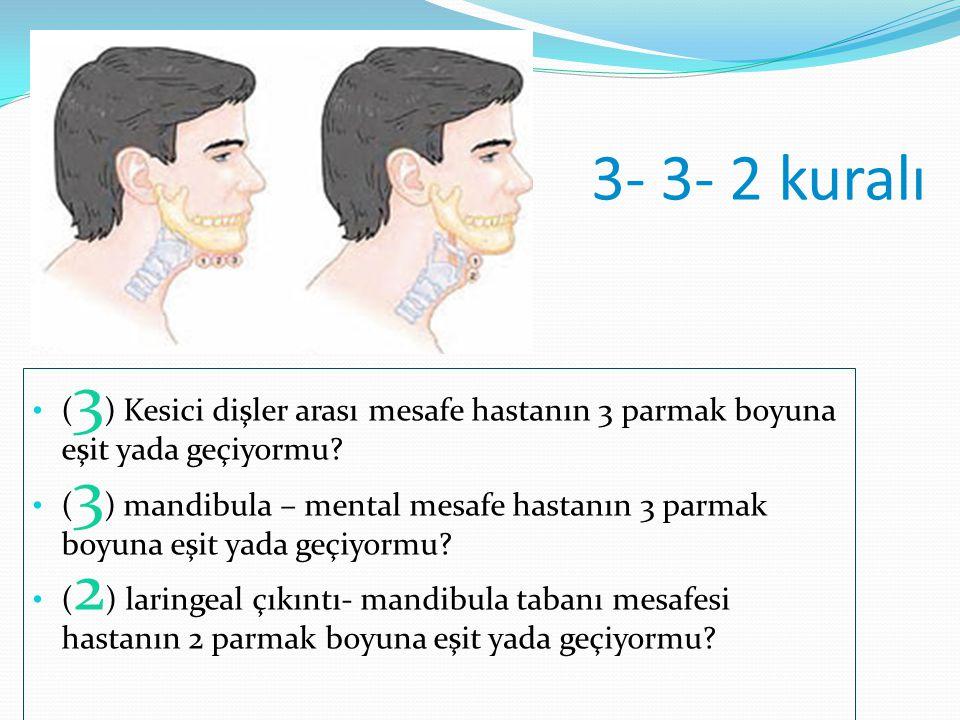 3- 3- 2 kuralı ( 3 ) Kesici dişler arası mesafe hastanın 3 parmak boyuna eşit yada geçiyormu? ( 3 ) mandibula – mental mesafe hastanın 3 parmak boyuna