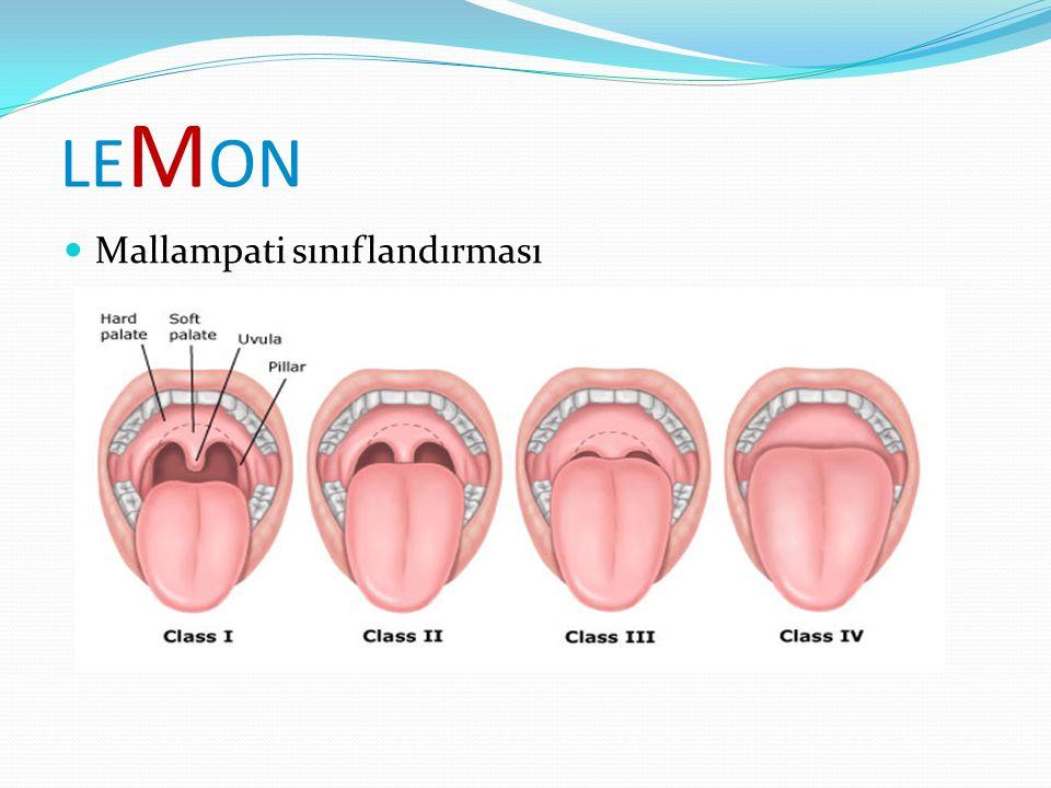 LE M ON Mallampati sınıflandırması