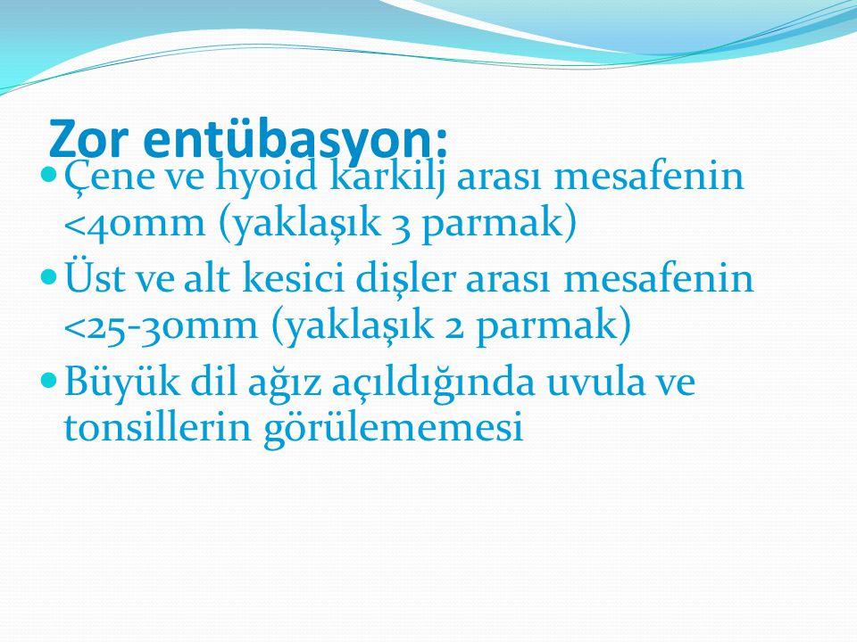 Zor entübasyon: Çene ve hyoid karkilj arası mesafenin <40mm (yaklaşık 3 parmak) Üst ve alt kesici dişler arası mesafenin <25-30mm (yaklaşık 2 parmak)