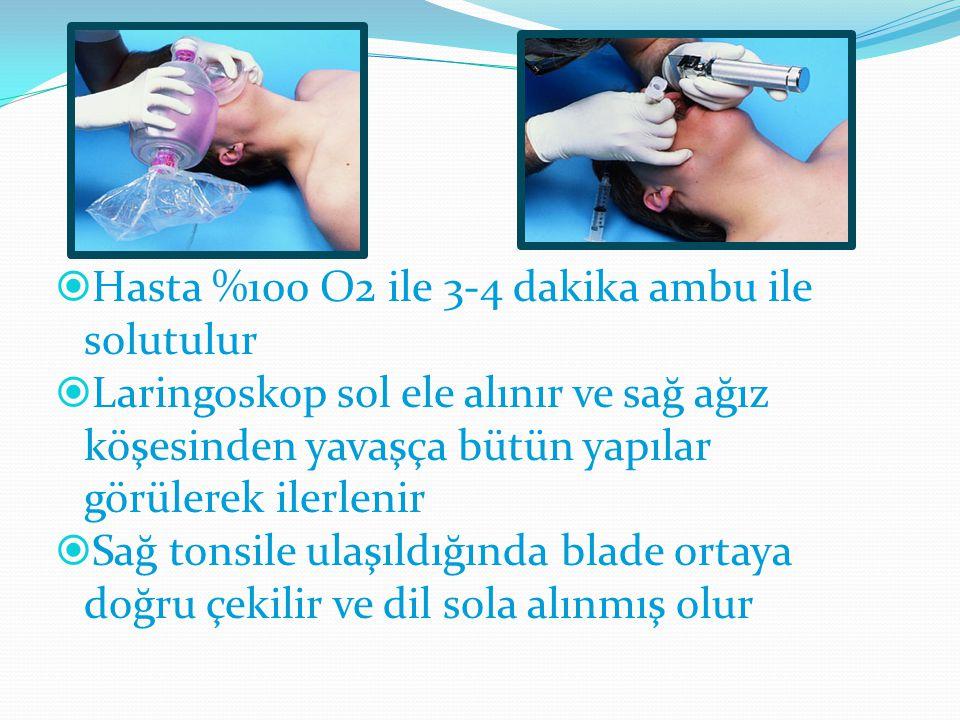  Hasta %100 O2 ile 3-4 dakika ambu ile solutulur  Laringoskop sol ele alınır ve sağ ağız köşesinden yavaşça bütün yapılar görülerek ilerlenir  Sağ