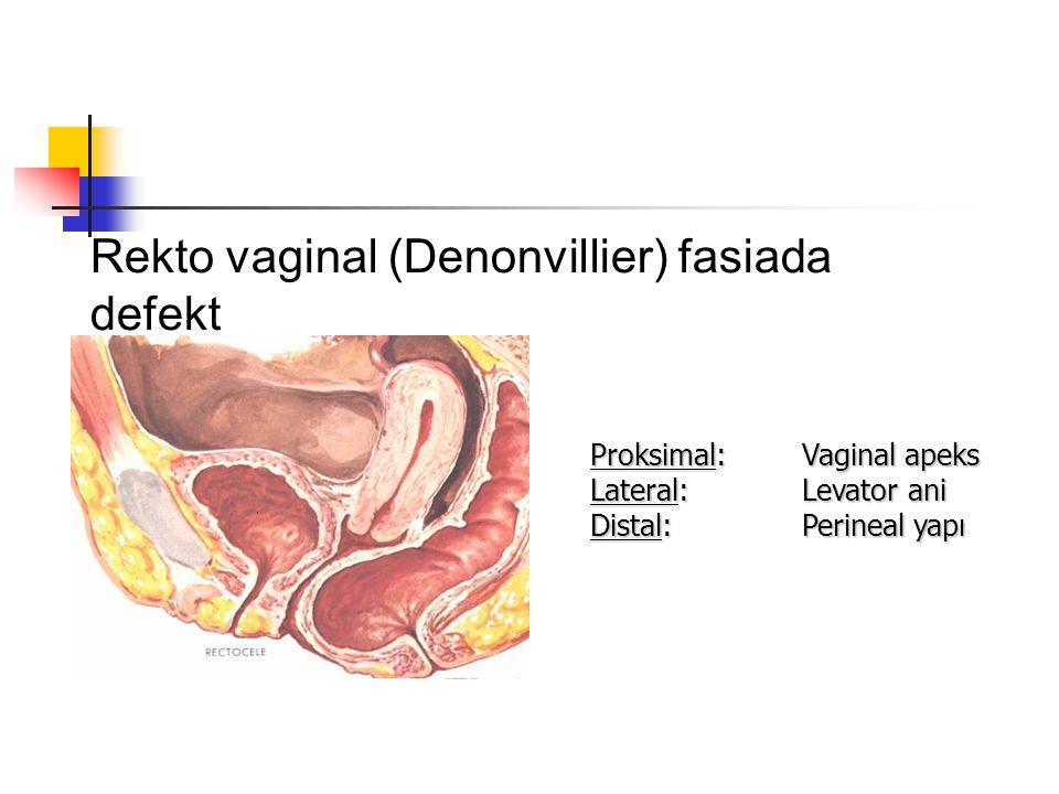 Rekto vaginal (Denonvillier) fasiada defekt Proksimal: Vaginal apeks Lateral:Levator ani Distal: Perineal yapı