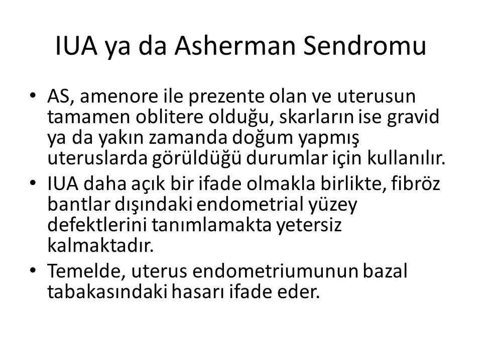 IUA ya da Asherman Sendromu AS, amenore ile prezente olan ve uterusun tamamen oblitere olduğu, skarların ise gravid ya da yakın zamanda doğum yapmış u