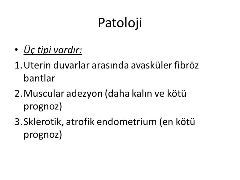 Patoloji Üç tipi vardır: 1.Uterin duvarlar arasında avasküler fibröz bantlar 2.Muscular adezyon (daha kalın ve kötü prognoz) 3.Sklerotik, atrofik endo