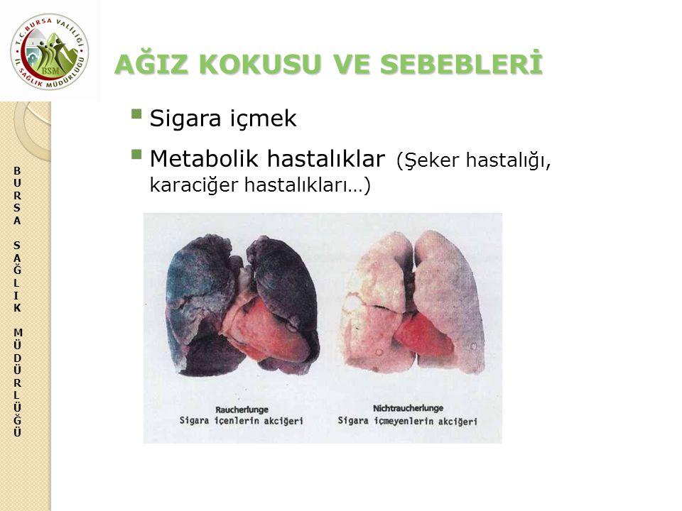 BURSASAĞLIKMÜDÜRLÜĞÜBURSASAĞLIKMÜDÜRLÜĞÜ AĞIZ KOKUSU VE SEBEBLERİ  Sigara içmek  Metabolik hastalıklar (Şeker hastalığı, karaciğer hastalıkları…)