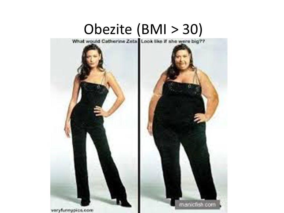 33 Obezite (BMI > 30)