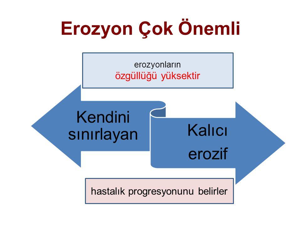 Erozyon Çok Önemli Kendini sınırlayan Kalıcı erozif erozyonların özgüllüğü yüksektir hastalık progresyonunu belirler