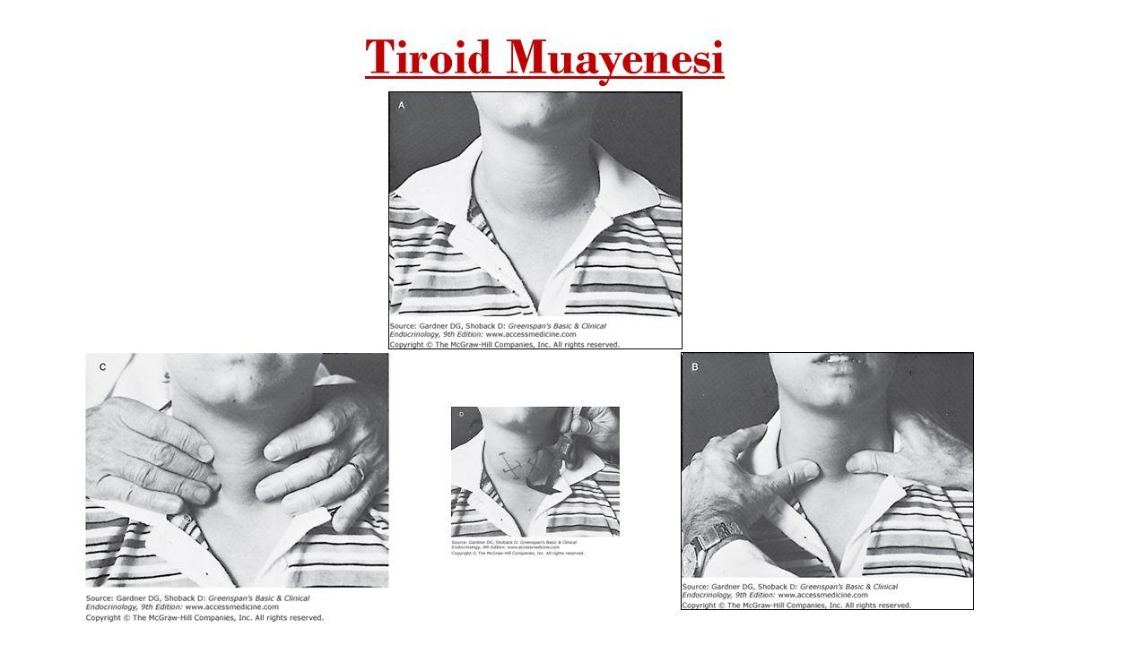 TEMD-2014 Önerisi Tiroid tarama testi olarak 3. veya 4. jenerasyon (ultrasensitif) TSH ölçümü yeterlidir. TSH'nin üst sınırını 4 mIU/L olarak almak ge