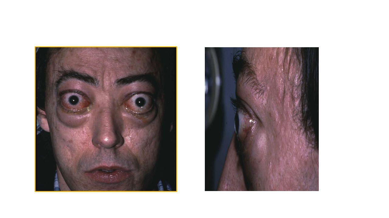Bulguları Kilo kaybı Kaslarda zayıflık Ellerde titreme Uyumada zorluk Çarpıntı Saçlarda incelme ve dökülme Ciltte incelme ve nemlilik ve a ş ırı terleme Ba ğ ırsak hareketlerinde artma, ishal Sinirlilik Egzoftalmi Adet düzensizli ğ i Guatr Sıca ğ a tahammül edememe Osteoporoz
