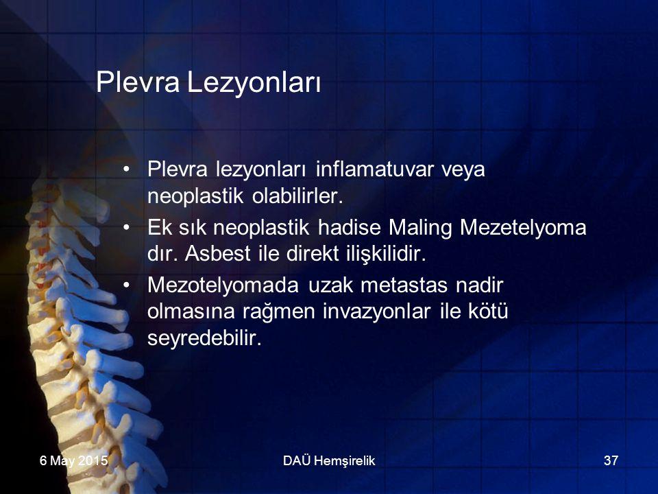 6 May 2015DAÜ Hemşirelik37 Plevra Lezyonları Plevra lezyonları inflamatuvar veya neoplastik olabilirler. Ek sık neoplastik hadise Maling Mezetelyoma d