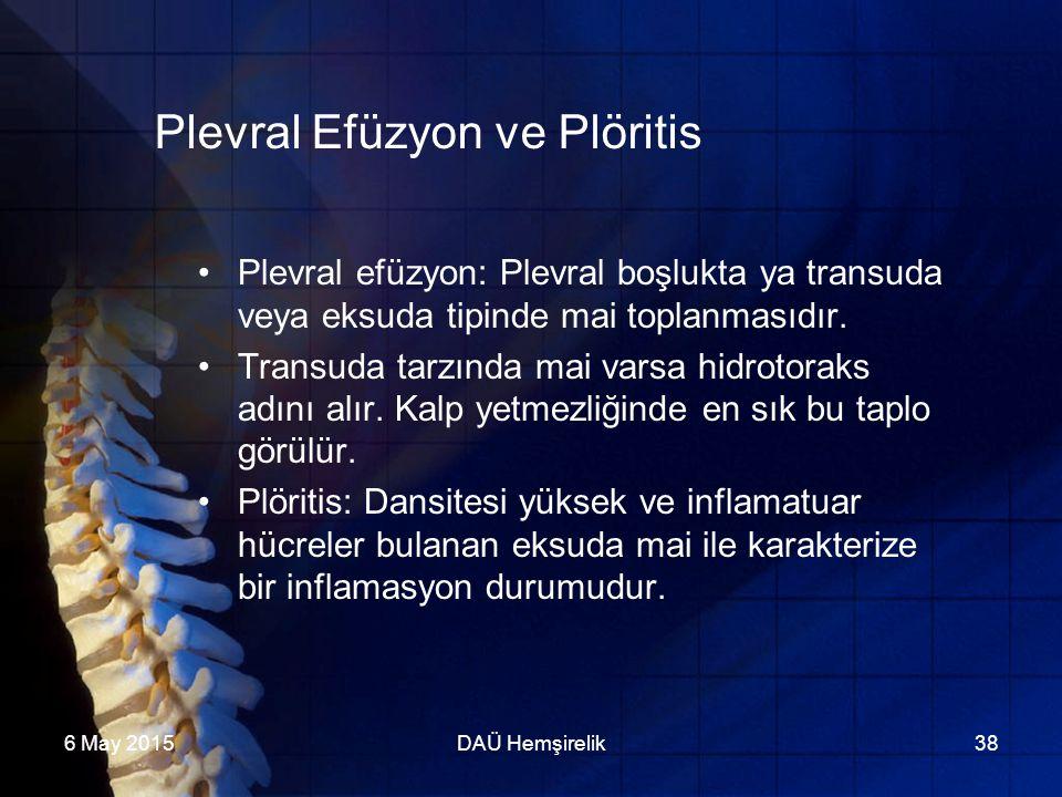 6 May 2015DAÜ Hemşirelik38 Plevral Efüzyon ve Plöritis Plevral efüzyon: Plevral boşlukta ya transuda veya eksuda tipinde mai toplanmasıdır. Transuda t