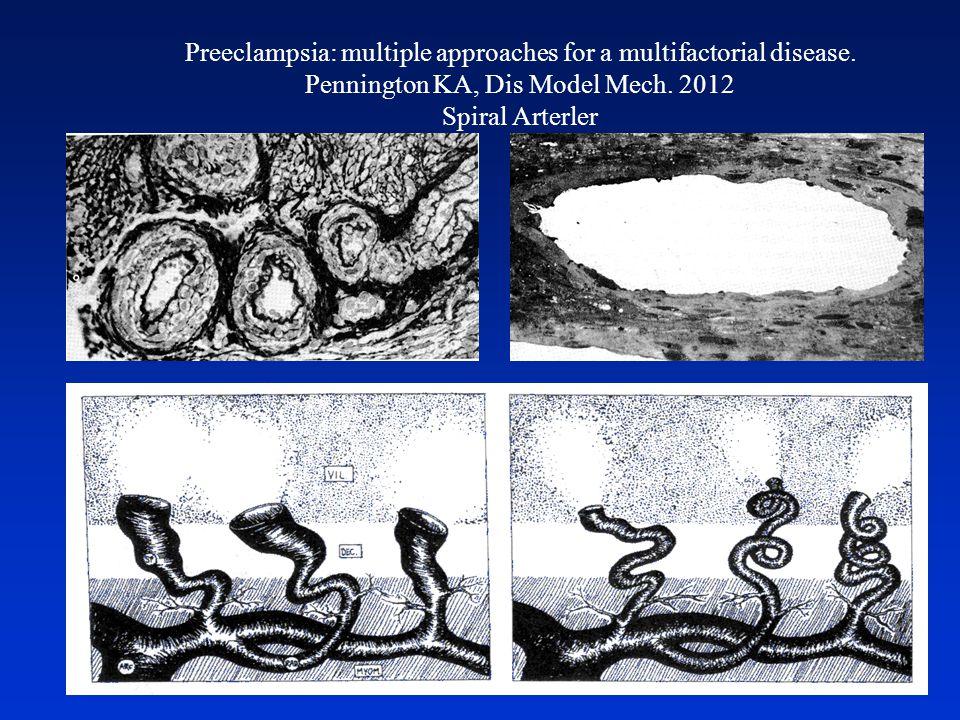 Preeclampsia: multiple approaches for a multifactorial disease. Pennington KA, Dis Model Mech. 2012 Spiral Arterler