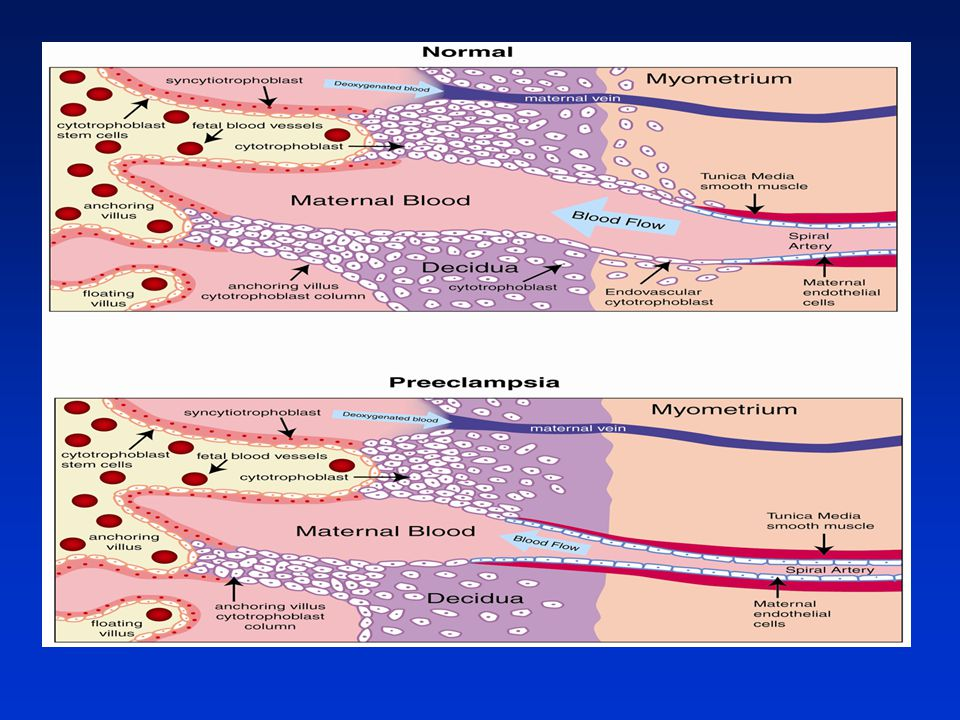 Preeclampsia: multiple approaches for a multifactorial disease. Pennington KA, Dis Model Mech. 2012
