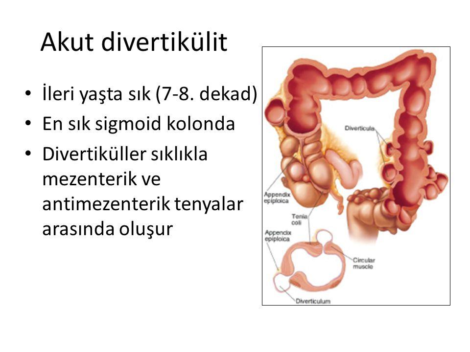 Akut divertikülit İleri yaşta sık (7-8. dekad) En sık sigmoid kolonda Divertiküller sıklıkla mezenterik ve antimezenterik tenyalar arasında oluşur