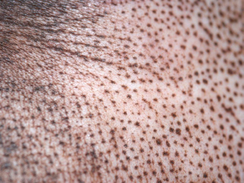 Vitiligo  Melanositlerin otoimmun yıkımına bağlı progresif bir hastalıktır.