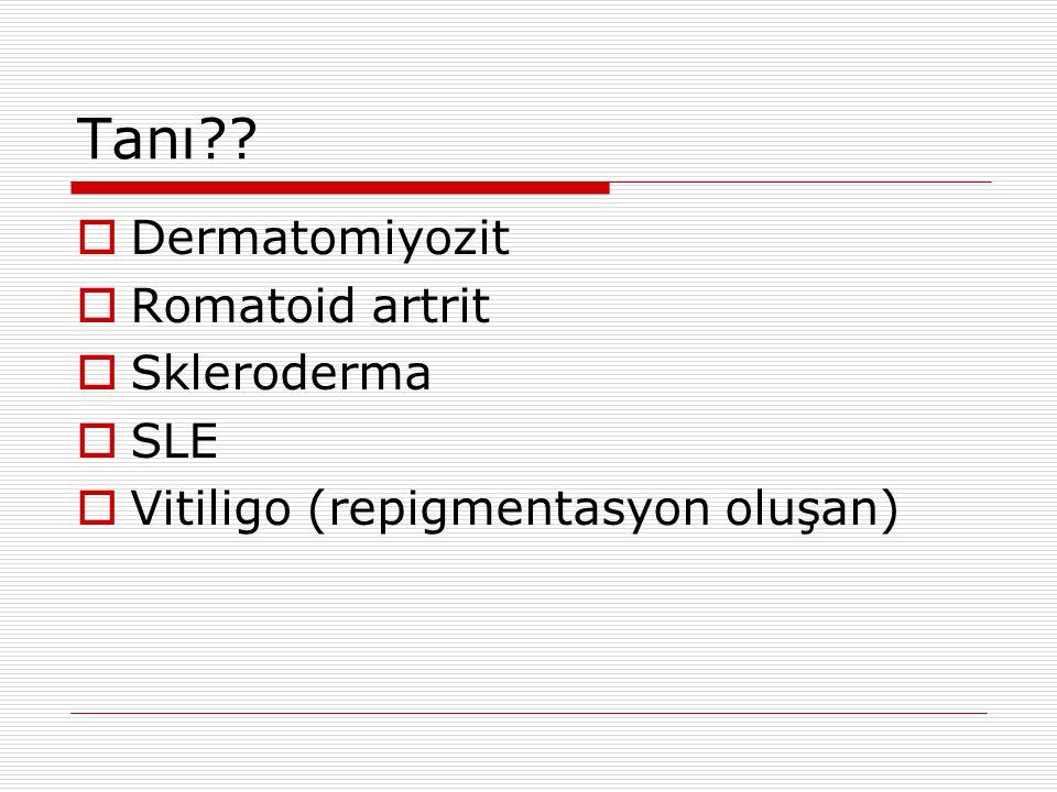  Cevap: Skleroderma