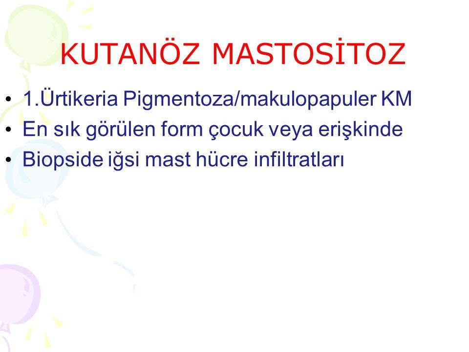 KUTANÖZ MASTOSİTOZ 1.Ürtikeria Pigmentoza/makulopapuler KM En sık görülen form çocuk veya erişkinde Biopside iğsi mast hücre infiltratları