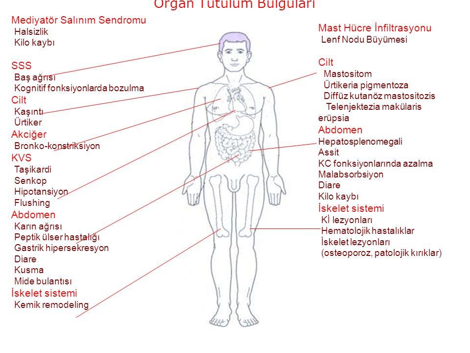 Mediyatör Salınım Sendromu Halsizlik Kilo kaybı SSS Baş ağrısı Kognitif fonksiyonlarda bozulma Cilt Kaşıntı Ürtiker Akciğer Bronko-konstriksiyon KVS Taşikardi Senkop Hipotansiyon Flushing Abdomen Karın ağrısı Peptik ülser hastalığı Gastrik hipersekresyon Diare Kusma Mide bulantısı İskelet sistemi Kemik remodeling Mast Hücre İnfiltrasyonu Lenf Nodu Büyümesi Cilt Mastositom Ürtikeria pigmentoza Diffüz kutanöz mastositozis Telenjektezia makülaris erüpsia Abdomen Hepatosplenomegali Assit KC fonksiyonlarında azalma Malabsorbsiyon Diare Kilo kaybı İskelet sistemi Kİ lezyonları Hematolojik hastalıklar İskelet lezyonları (osteoporoz, patolojik kırıklar) Organ Tutulum Bulguları