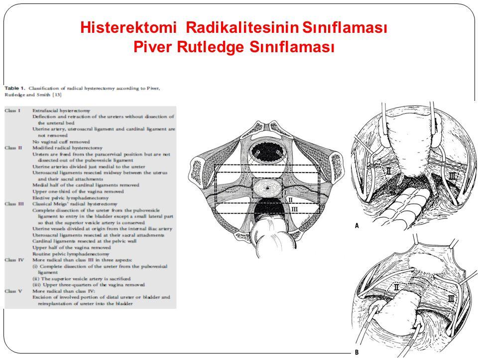 Histerektomi Radikalitesinin Sınıflaması Piver Rutledge Sınıflaması