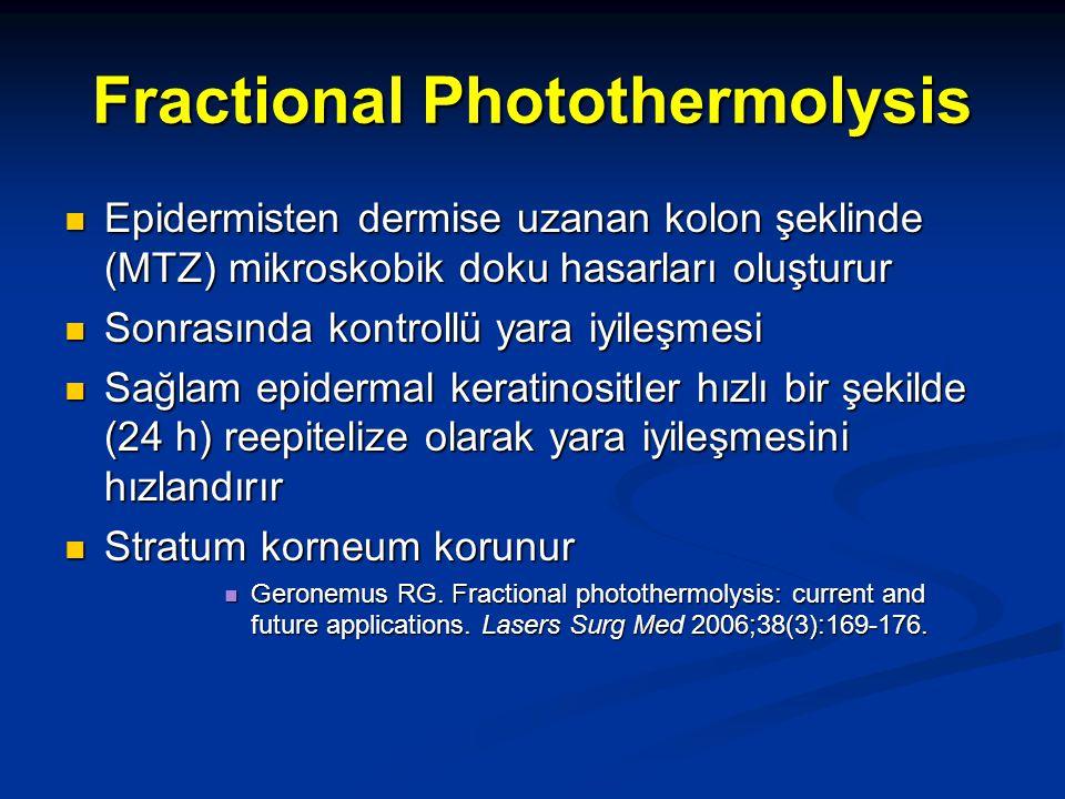 Fractional Photothermolysis Epidermisten dermise uzanan kolon şeklinde (MTZ) mikroskobik doku hasarları oluşturur Epidermisten dermise uzanan kolon şe